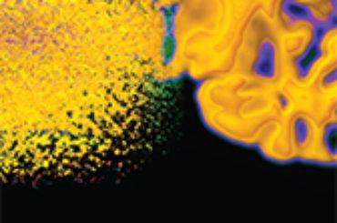 Le onde di pressione cardiaca verso il cervello lungo le vene giugulari: una verità dimenticata