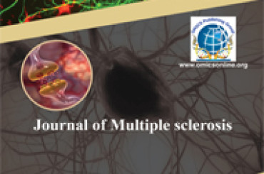 Sclerosi Multipla e patologia della vena giugulare interna