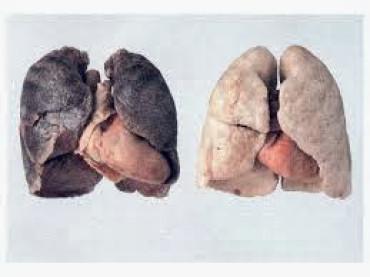 Tumore del polmone: identikit geneticoper terapie più efficaci e tollerate; le nuove opzioni