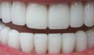 dentibelli[1]