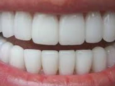 Caro dentista, ma quanto mi costi?
