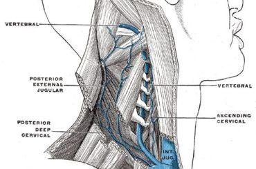 Sclerosi multipla: l'insufficienza venosa cronica cerebrospinale (CCSVI)