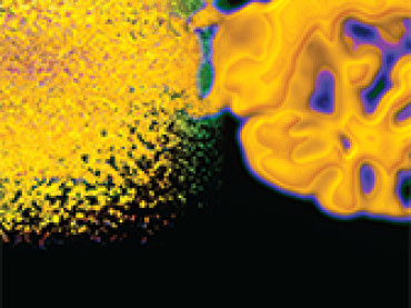 Medicina: da Ferrara un nuovo metodo per valutare il ritorno venoso cerebrale