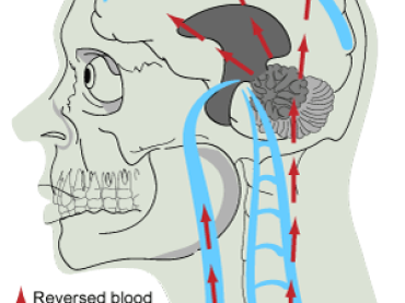 Medicina: anormalità vascolare nella sclerosi multipla: una cosa reale?