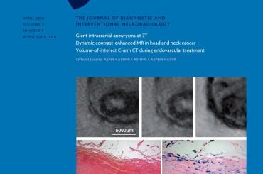 Sclerosi multipla: l'ostruzione giugulare determina maggiori circoli collaterali
