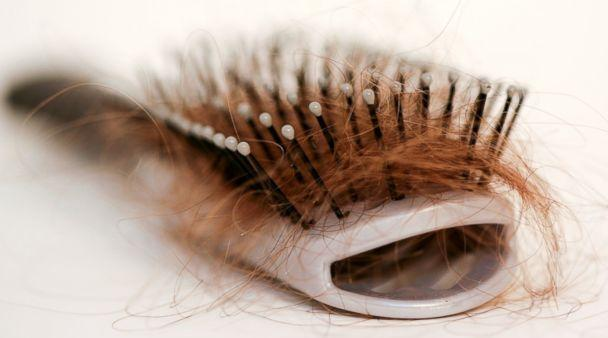 caduta-capelli-rimedi (1)